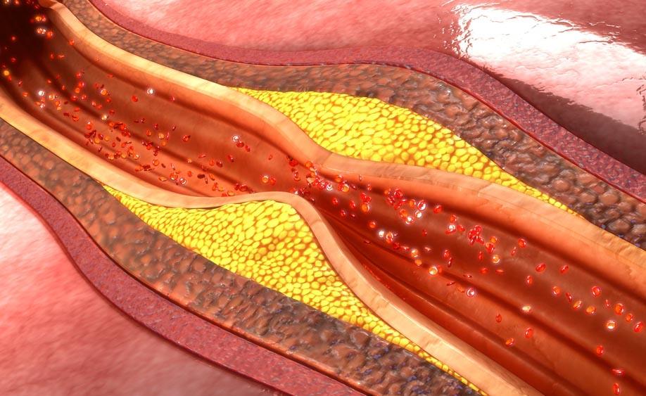Il mito dei grassi saturi che ostruiscono le arterie