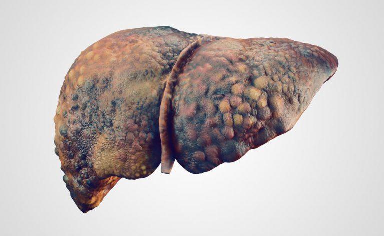 epatocarcinoma e perdita di peso