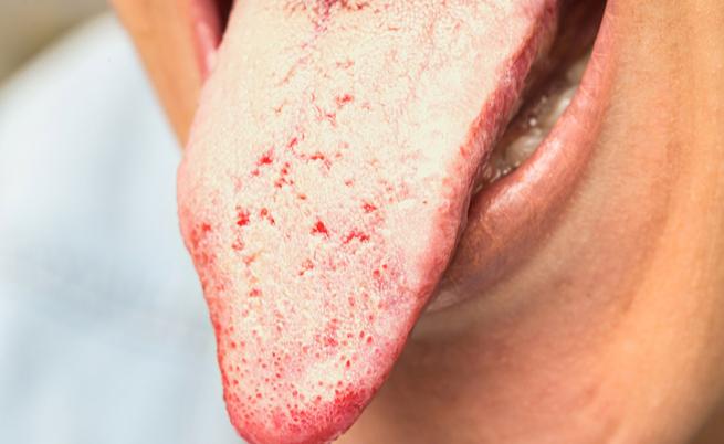 come curare la candida in bocca