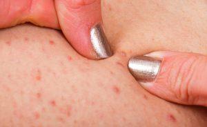 Follicolite: cause, sintomi e rimedi naturali per la follicolite da depilazione
