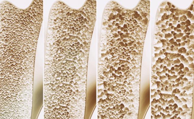 Osteoporosi: riconoscerla per curarla, anche in vacanza!