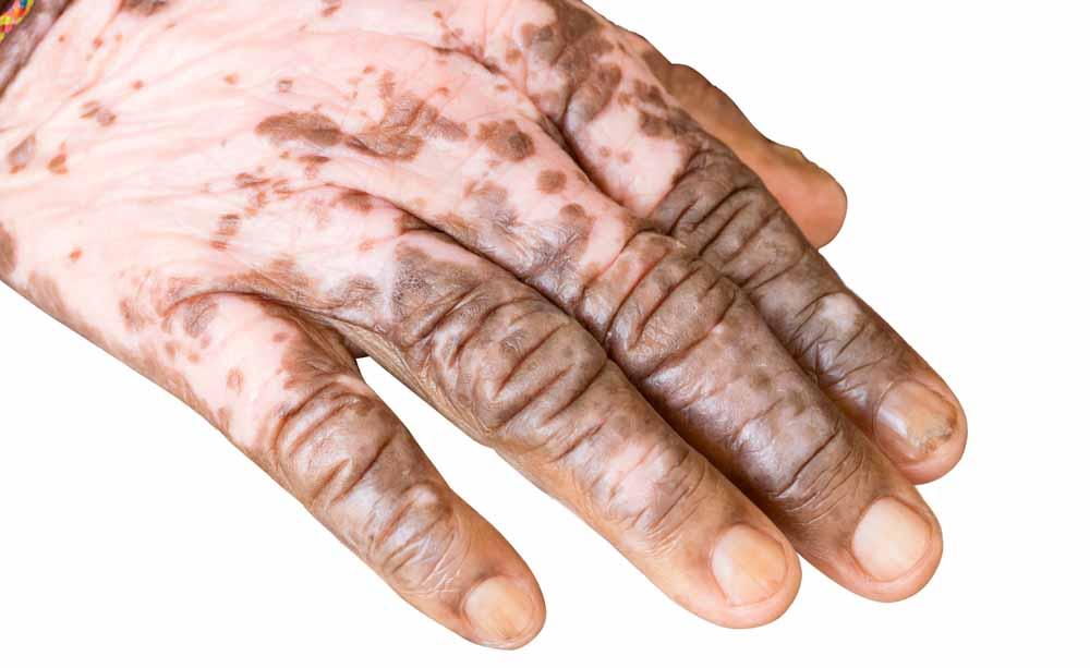 Albinismo e vitiligine: le caratteristiche delle patologie