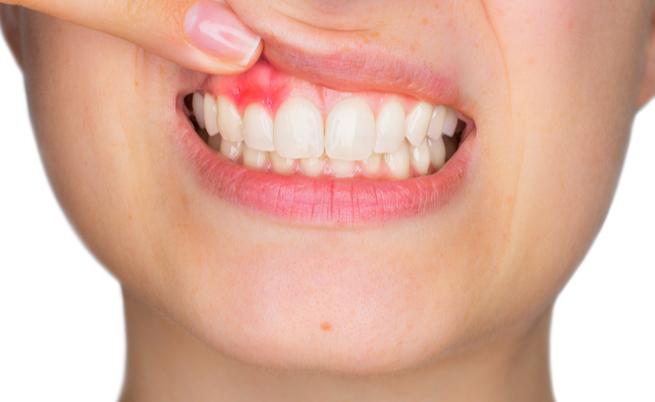 10 rimedi efficaci per gengive infiammate