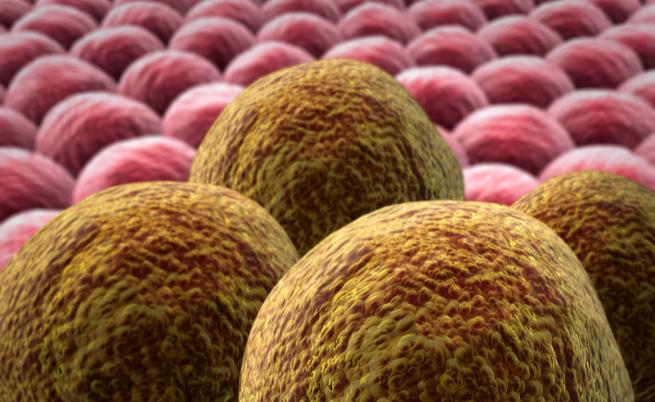 Come nasce un tumore: quello che non sapete sulle neoplasie