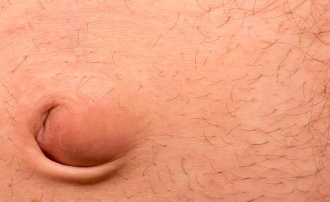 perdere peso prima della chirurgia dell ernia ombelicale