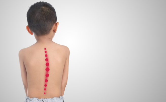Lo zaino pesante del tuo bambino causa davvero problemi alla schiena?
