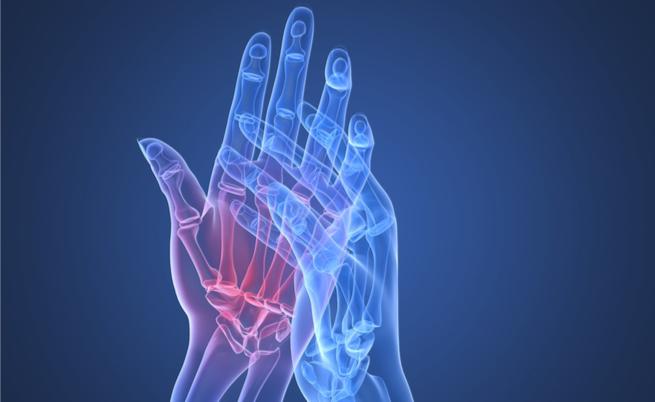 Simptomele osteochondrozei ?i forumul de tratament