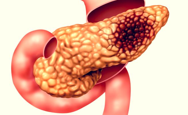 cancro pancreas sopravvivenza