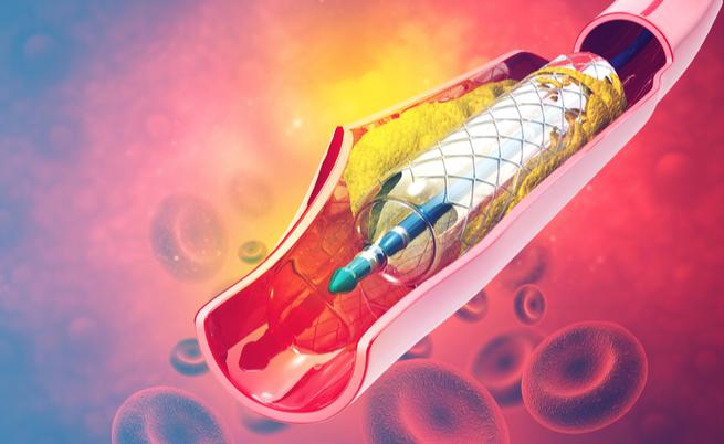 Sclerosi multipla: l'angioplastica è efficace oppure no?