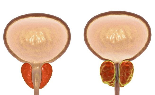 prostata di 46 mm