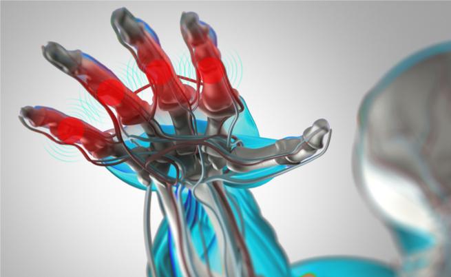 Arriva in Italia un nuovo farmaco contro l'artrite reumatoide