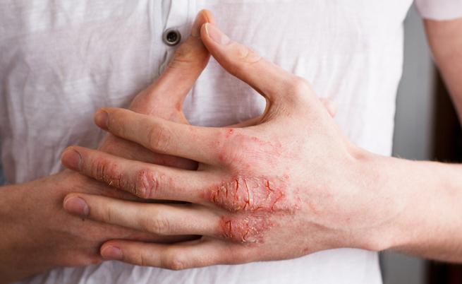 10 cose che tutti dovrebbero sapere sull'eczema
