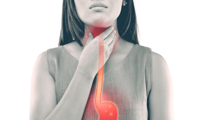 15 cibi acidi da evitare (per prendersi cura di stomaco, ossa e reni)