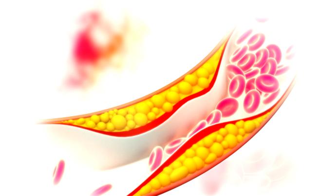 Le uova fanno male a chi soffre di colesterolo alto: vero o falso?