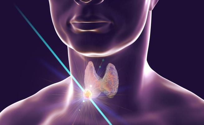 Come riconoscere e curare un nodulo alla tiroide