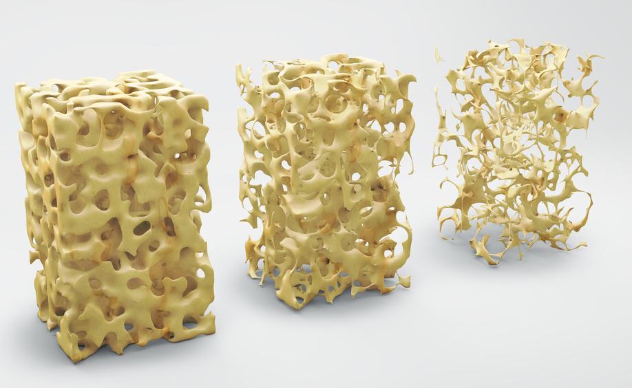 I cibi giusti per alleviare i sintomi dell'osteoporosi
