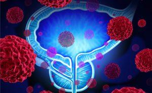 Tumore alla prostata: la terapia ormonale aumenta il rischio cardiaco