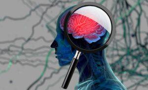 test alzheimer: per monitorare la popolazione a rischio