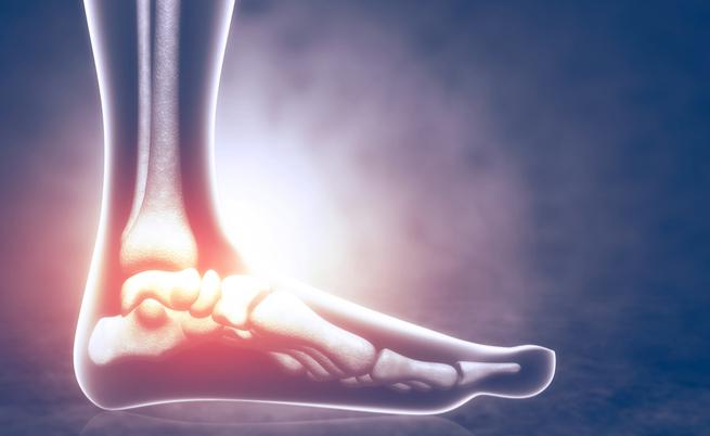 Artrosi del piede: cosa comporta l'intervento chirurgico?