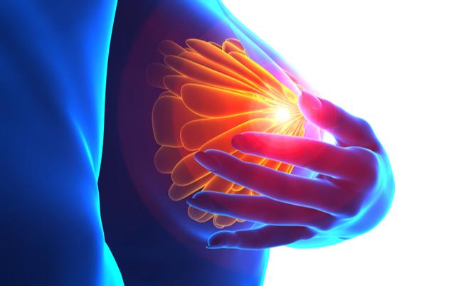 Tumore al seno in fase avanzata: qual è il nuovo farmaco rimborsabile