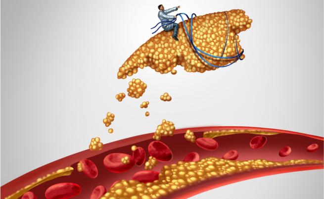 Colesterolo alto, dopo i 60 anni non è più un problema: vero o falso?