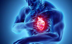 Extrasistole: sintomi, cause e cura