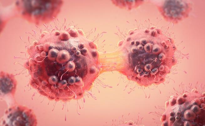 5 tumori davvero curabili