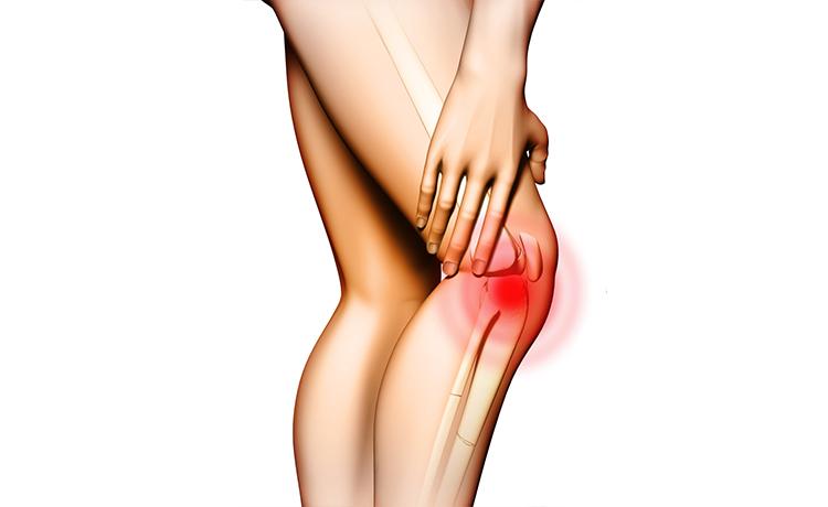 Come curare l'artrosi? Le tecniche migliori per dire addio al dolore!