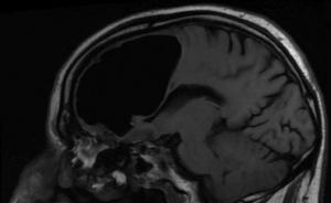 Pneumocefalo: una bolla d'aria nel cervello