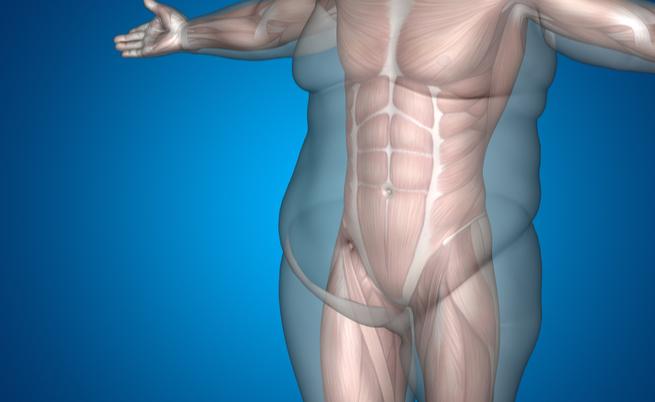 Riduzione dello stomaco? Quello che devi sapere sull'intervento
