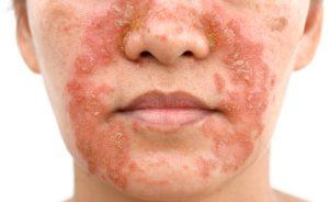 dermatite seborroica in primavera: sintomi, cause e rimedi