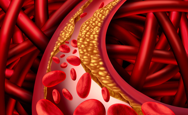 Abbassa il colesterolo e non solo: i 10 benefici del cioccolato