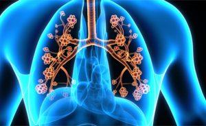 I farmaci asma allergica: i più efficaci