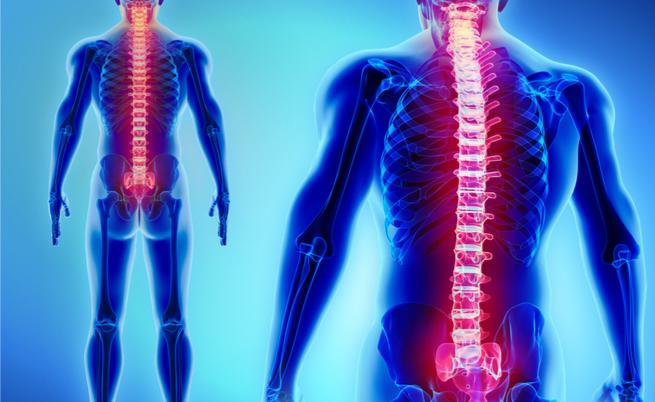 Formicolio, intorpidimento e dolore alla schiena: se fosse radicolopatia?