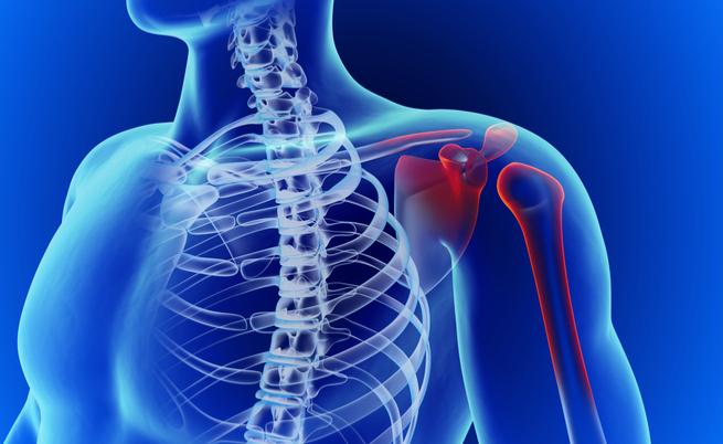 Il mal di spalla non passa più? Forse potrebbe essere periartrite