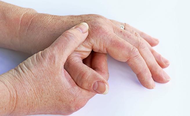 Soffri di artrite psoriasica? I rimedi per alleviare i dolori