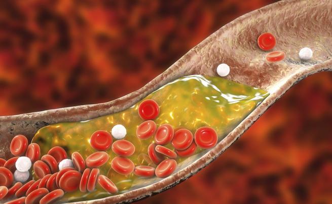 Crampi e dolori alle gambe: potrebbe essere colpa del colesterolo alto