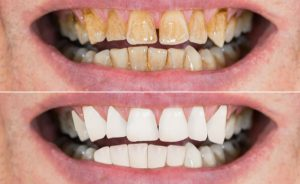 I rimedi naturali per sbiancare i denti gialli