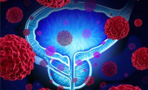test genetici cancro alla prostata: per una diagnosi precoce