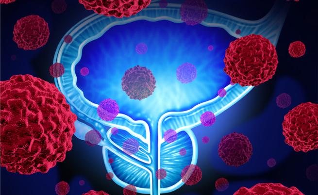 C'è il rischio di tumore alla prostata? Ve lo dicono i test genetici