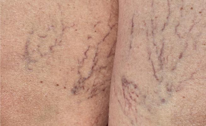 Combattere i capillari rotti: i rimedi più efficaci (naturali ma non solo)