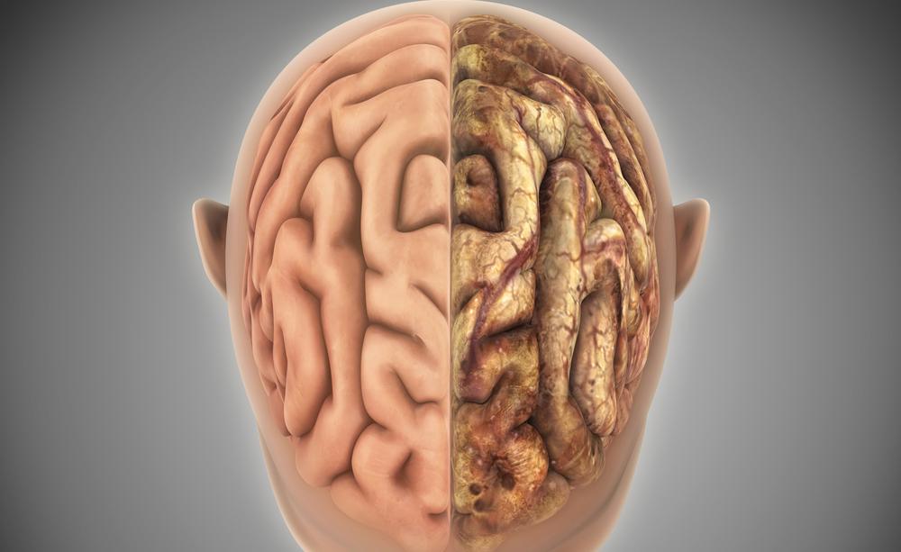 10 modi per prevenire un ictus cerebrale