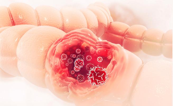 Tumore al colon-retto, perché la dieta è così importante: cosa mangiare e cosa no