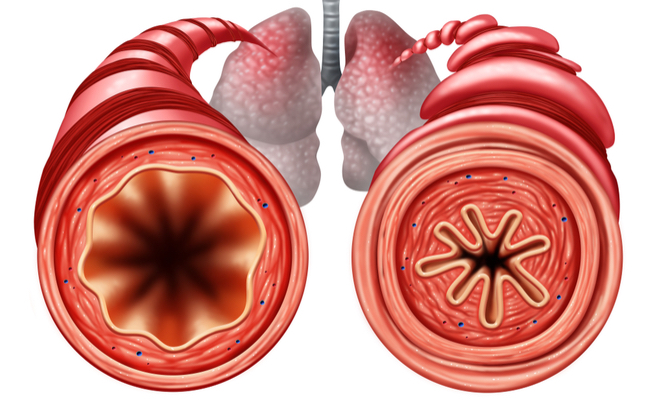 Perché gli attacchi di asma vengono di notte?