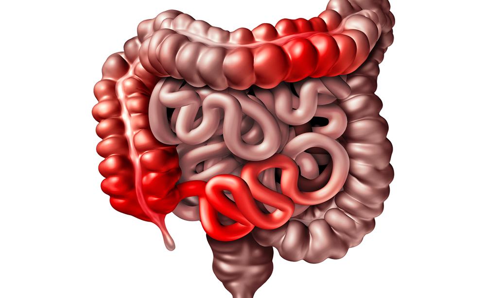 Malattia di Crohn e colite ulcerosa: quello che non si osa chiedere sulle Malattie Croniche Intestinali
