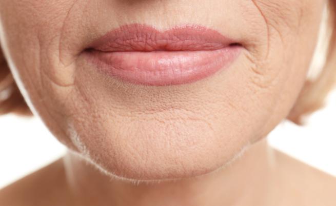 Collagene: i rimedi naturali per stimolarne la produzione (e dire addio alle rughe)