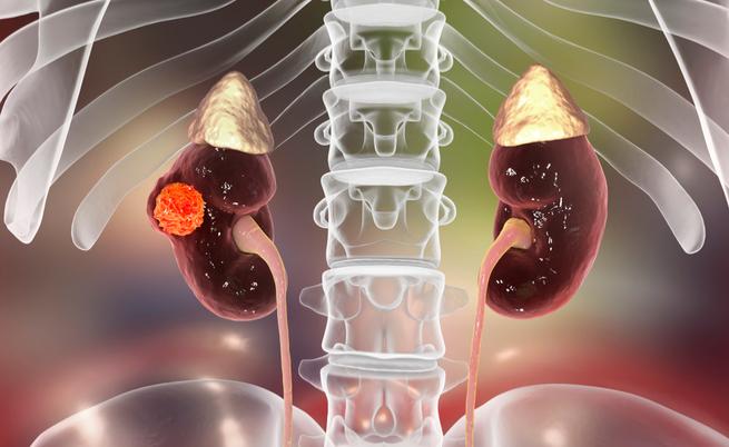 Le 3 forme di tumore più diffuse tra gli anziani