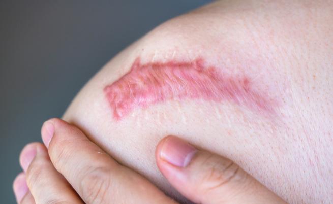 Cheloidi, quando le cicatrici non passano più: come eliminarle