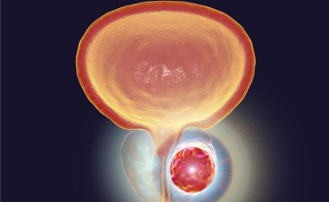 test per rilevare il cancro alla prostata