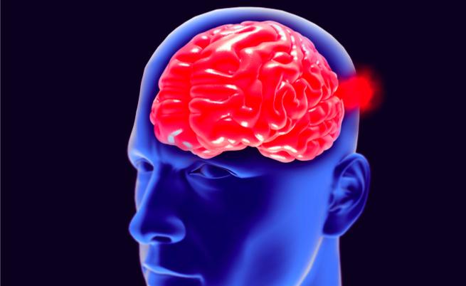 È possibile avere un aneurisma cerebrale e non accorgersi?